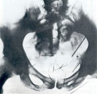 X-ray of Fish's pelvis and perineum, introduced as evidence at his trial, demonstrating more than two dozen self-embedded needles