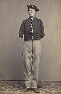 Pvt William Sergeant of Company E, 53rd Pennsylvania after the amputation of both arms, 1862