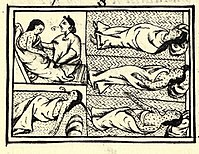 Smallpox depicted by an indigenous artist in the 1556 Florentine Codex in its account of the conquest of Mexico from the point of view of the defeated Mexica.