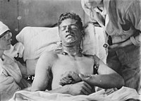 A Canadian soldier with mustard gas burns, c. 1917–1918