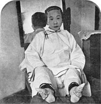 Chinese woman shows the effect of foot binding