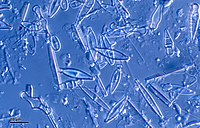 Diatoms are one of the most common types of phytoplankton.